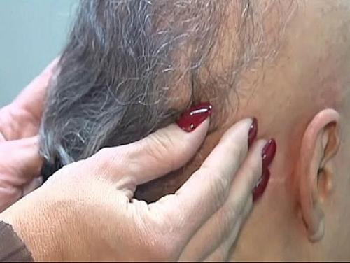 Unexpected Hair Loss: Some Women Forced To Choose Between Hair & Health